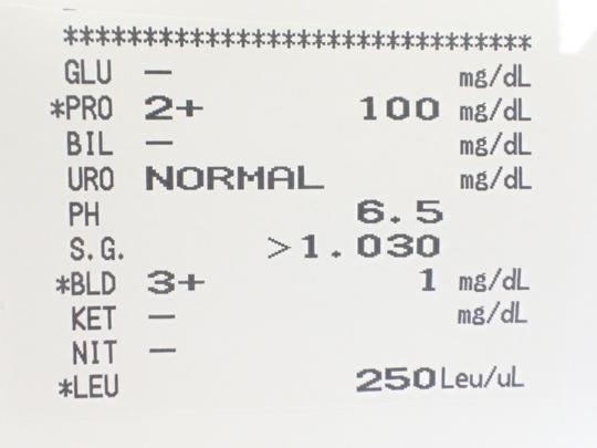 尿 検査 細菌 尿沈渣で細菌が・・・基準値や原因まとめ!考えられる疾患は?